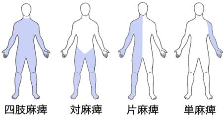 四肢麻痺~単麻痺t.pngのサムネール画像